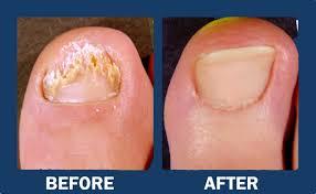 yellow nails toe nail fungus treatment fungus treatment charlottesville va foot doctor