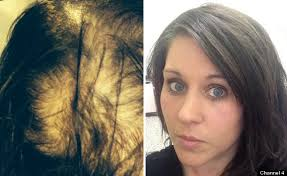 best hairstyle for alopecia woman who suffered severe hair loss undergoes transformation in