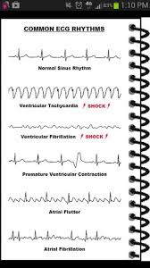 57 best ekg ecg interpretation images on pinterest cardiac
