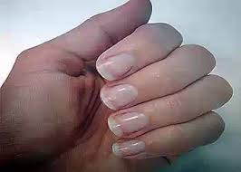 what the nails say about your health health nigeria