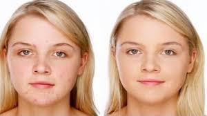Light Spots On Face Getting Rid Of Dark Spots On Face