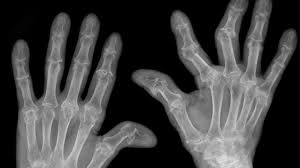 pictures of arthritis in fingers and knuckles