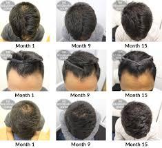 belgravia hair loss blog