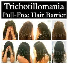 trichotillomania before and after pictures