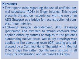 use of artificial dermal substitute as a bridge in complex finger