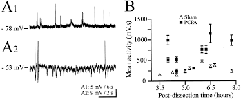 postural modifications and neuronal excitability changes induced