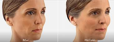 best hairstyles for sagging jowls saggy cheeks and jowls treatment in lexington ky bemedispa