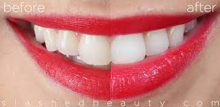 crest supreme whitening strips review with before after crest 3d white whitestrips slashed