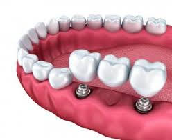 Bridge Dental Cost Estimate by Cheap Dental Implants How To Save On Teeth Implant Costs In The Uk