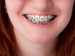 mumsnet overbite does your child really need braces weighing the options