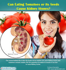 eating tomatoes or its seeds cause kidney stones