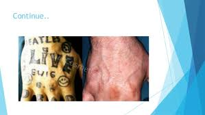 unwanted tattoos get best ideas from tattoo removal before and after u2026
