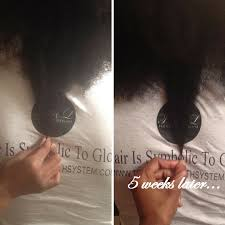 Coconut Oil For Hair Growth Results Amazon Com Trl Faster Hair Growth Oil Beauty