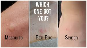 What To Use On Bed Bug Bites What U0027s The Difference Between Flea Bed Bug Mosquito And Spider