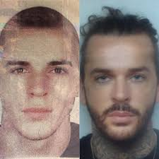 pete wicks hits eye colour transplant claims daily mail