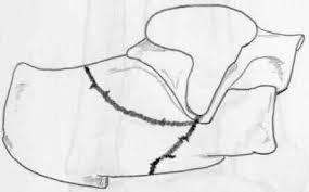 Os Calcaneus Wheeless U0027 Textbook Of Orthopaedics