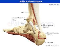 Ankle Ligament Tear Mri Best 20 Broken Ankle Symptoms Ideas On Pinterest Symptoms Of