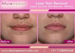 how much does laser hair removal cost on back how much laser hair removal for upper lip the art of beauty
