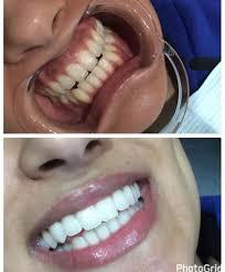 Groupon Teeth Whitening Chicago The Brightening Studio Teeth Whitening 4343 Pacific Ave