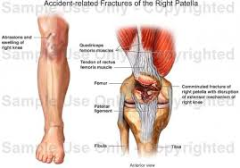 Right Knee Anatomy Accident Related Fractures Of The Right Patella Medical