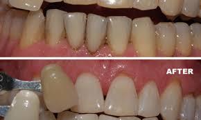 splendid snapshot of home teeth bleaching phenomenal best