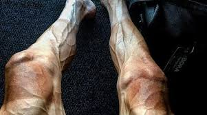 image of cyclist shares look of his legs from tour de and the