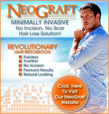 percentae of men with thinning hair at 60 about neograft maryland neograft hair restoration maryland dc