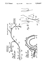 patent us5234407 method and device for exchanging cardiovascular