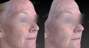 light therapy for skin laser light therapy