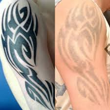 the missing ink laser tattoo removal home facebook