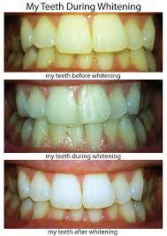 crest 3d white whitestrips with light review crest 3d whitestrips professional effects review