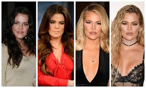 plastic surgery see the kardashians u0027 transformations before your