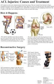 Webmd Human Anatomy 22 Best Musculoskeletal System Images On Pinterest Medicine