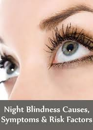 Night Blindness Deficiency Night Blindness Causes Treatment Symptoms And Risk Factors