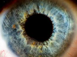 What Is Congenital Blindness 111 Best See The Future Medical Breakthroughs In Vision Images On