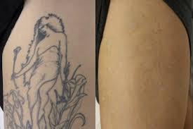 wigan laser tattoo removal wigan