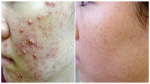 Best Skin Care For Adults With Acne Overnight Removal Of Acne U0026 Acne Scars I Best Indian Home Remedies