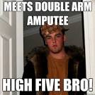 double arm amputee