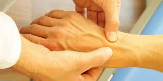 schmerzen in der handfläche typisches karpaltunnelsyndrom symptom nächtliches einschlafen der
