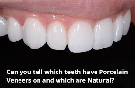 things to help you decide if porcelain veneers are for you