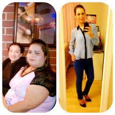 before and after rny or gastric bypass surgery 4 days away from
