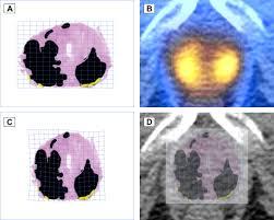 histopathological correlation of 11c choline pet scans for target