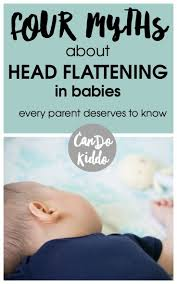 21 best baby flat head syndrome prevention u0026 treatment