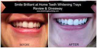 pro light dental whitening system reviews smile brilliant at home teeth whitening trays review prize pack