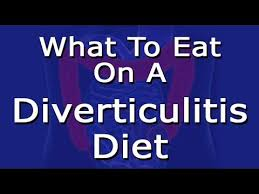 diverticulitis diet what to eat youtube