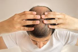 new hair growth discoveries hair loss treatments for men best options