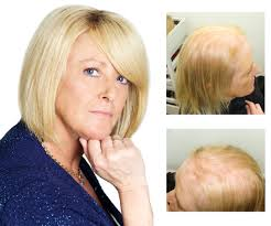 lauren suffers from a not so common form of hair loss caused by