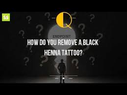 how do you remove a black henna tattoo youtube
