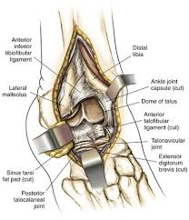 Anterior Distal Tibiofibular Ligament Foot And Ankle Clinical Gate