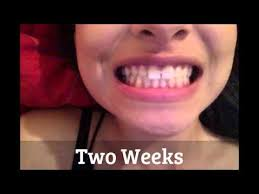 goody bands for teeth closing gap with rubber bands mp3